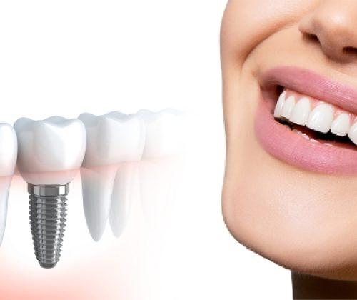 Dental-implant_600x315